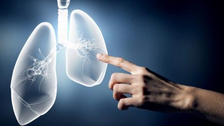 谷歌人工智能比医生更擅长诊断肺癌 | 硅谷洞察