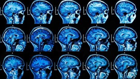 医学影像公司使用AI对鼻窦和脑部扫描结果进行分类 |硅谷洞察