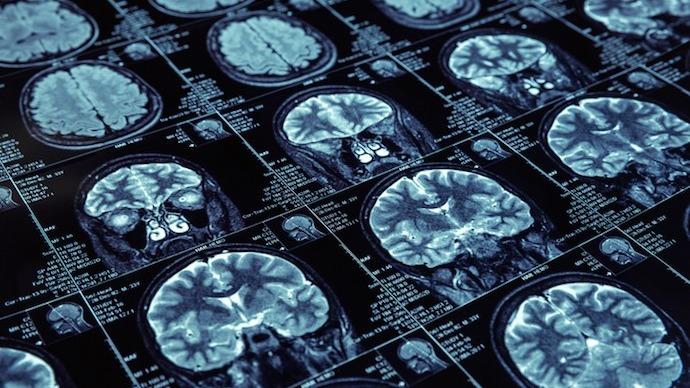 人工智能更好应用于医学影像的四个要点
